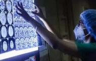 கறுப்பு பூஞ்சை நோய் இலங்கைக்கு புதிதானதல்ல – வைத்திய நிபுணர்ப்ரீமாலி ஜயசேகர